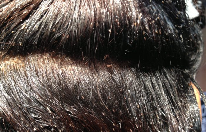 Head Lice Facts